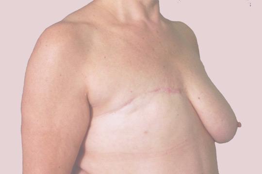 Chirurgia Rekonstrukcyjna